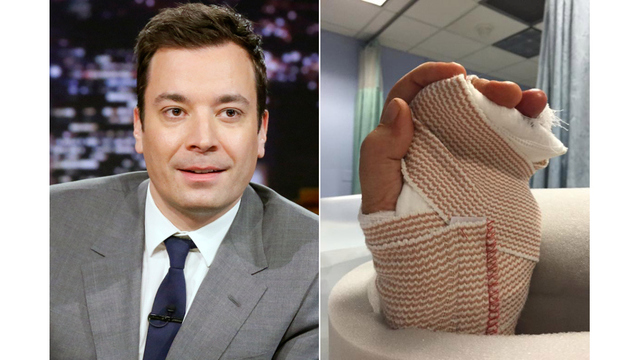 Jimmy Fallon explains injury in 'Tonight Show' return: Finger almost had to be amputated